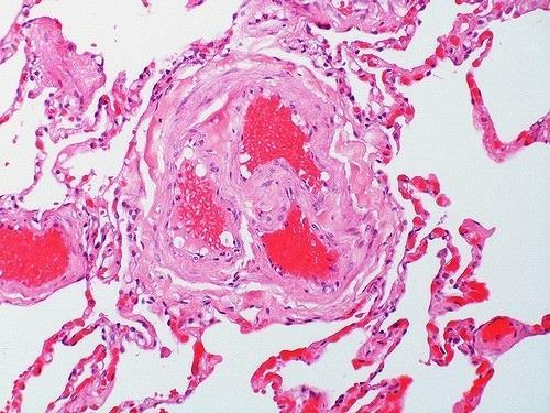 ep trombosis